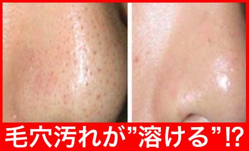 汚れ の の 鼻 毛穴